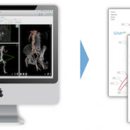 Life Supporting Software for Treatment of Aortic Aneurysms by SOVAmed from Koblenz